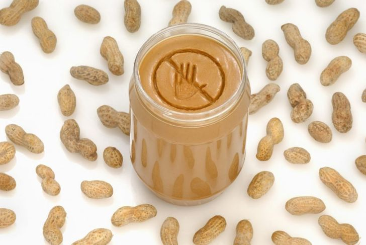 peanut allergy symptoms dog